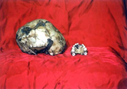 Gyermek koponya és felső állkapocs