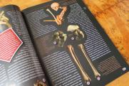 A TBC, a szifilisz és a lepra döbbenetes hatása a csontokra